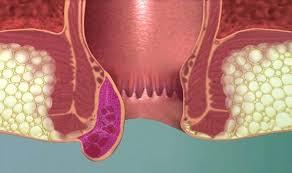 Hemoroidal hastalığın belirtilerinedir?