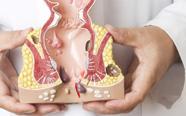 Hemoroidal Hastalık Sebepleri